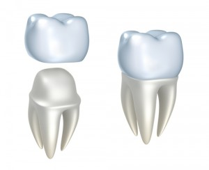dental-crowns