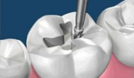 Learn about tooth fillings